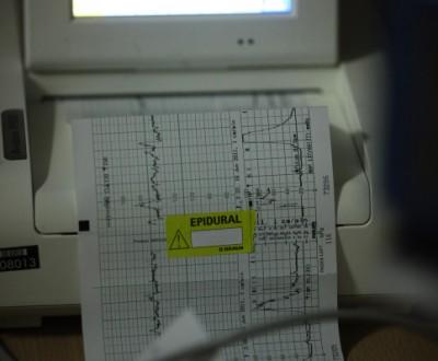 monitor בדיקת לידה