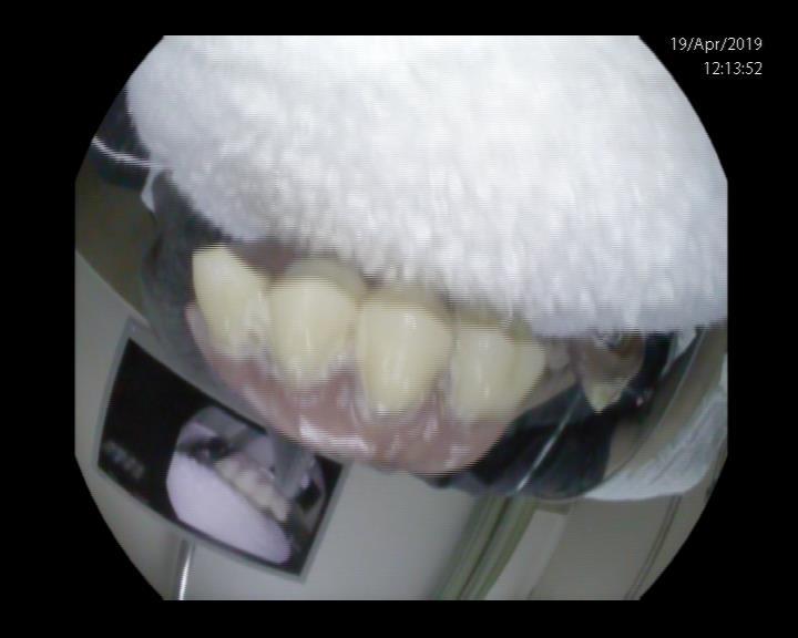 פלטת שיניים תותבות שנבלעה
